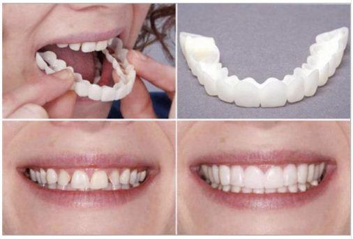 Накладные зубы виниры