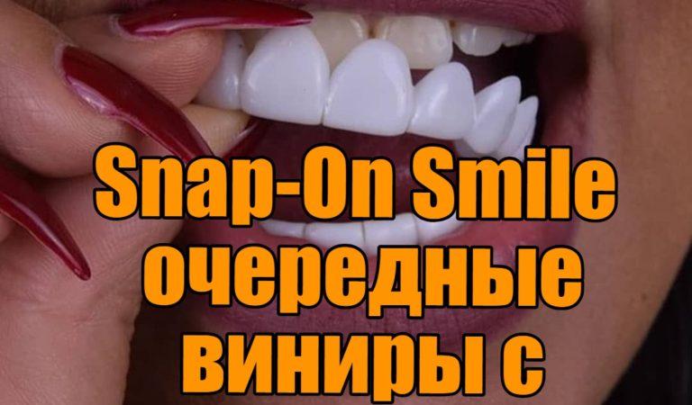Snap-On Smile очередные виниры с алиэкспресс